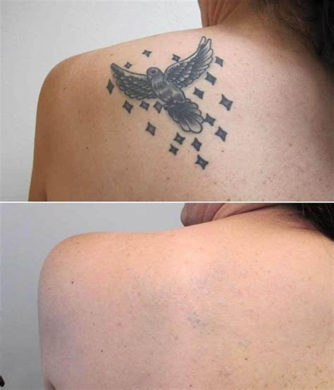 wrist tattoo removal before and after laser removal contour dermatology