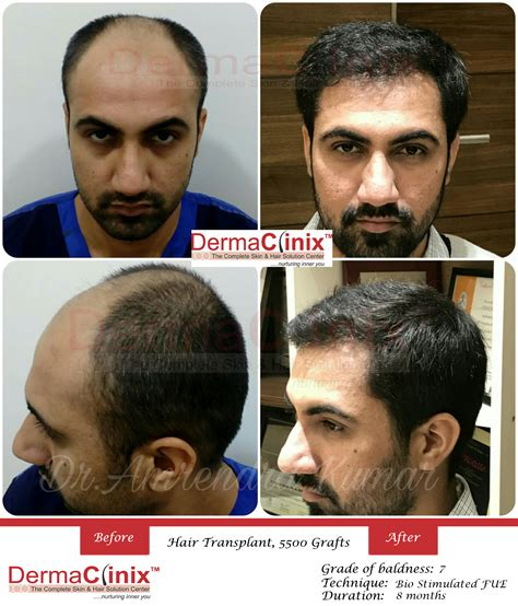 best hair transplant in india hair transplant surgery prp results before and after photos