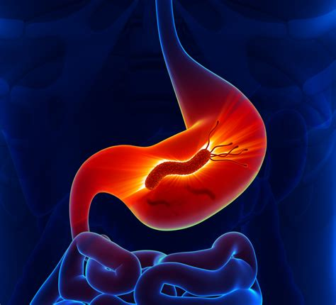 h pylori carbohydrates is gerd caused by h pylori low stomach acid