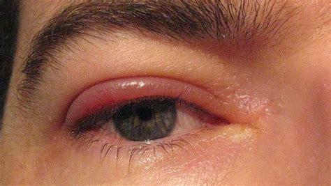 dolore interno occhio occhio ed annessi oculari la guida completa occhio it