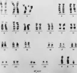 Fig 1 karyotype derived from a 47 xxy klinefelter syndrome patient