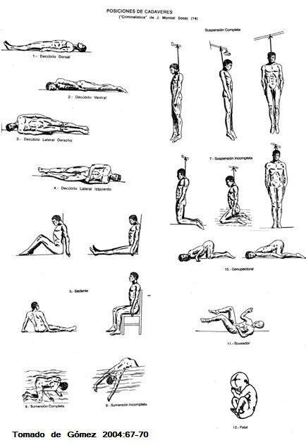 Posiciones cadavéricas. | Posiciones cadavericas
