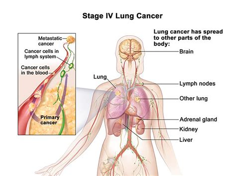 blogger lung advances offer new hope to lung cancer patients osuccc