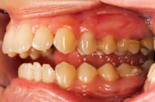 gums causes home remedy sore in back of