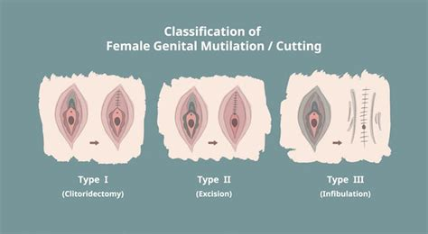 Modification Or Mutilation by Why The Against Mutilation Should Be