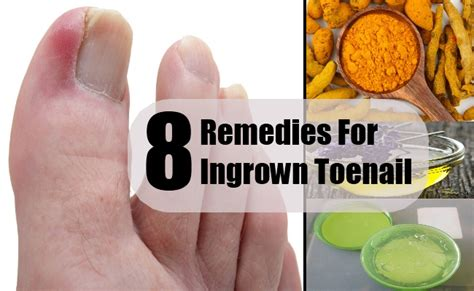 ingrown toenail pictures remedies treatment and