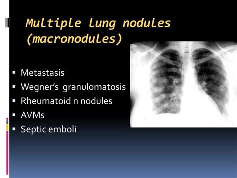 Multiplek Lung ppt dr ahmed refaey frcr powerpoint presentation id 3113600