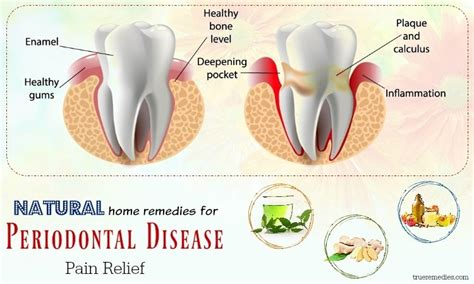 60 best home remedies for bacterial infection in throat