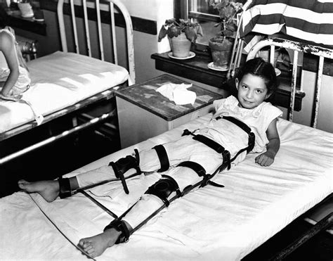bed and body young polio victim in bed with a body photograph by everett