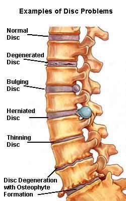 spondylosis or spinal osteoarthritis