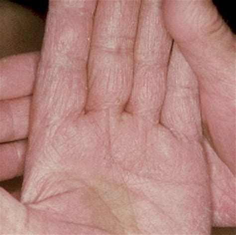 fungal skin infection pictures info fungal skin infection