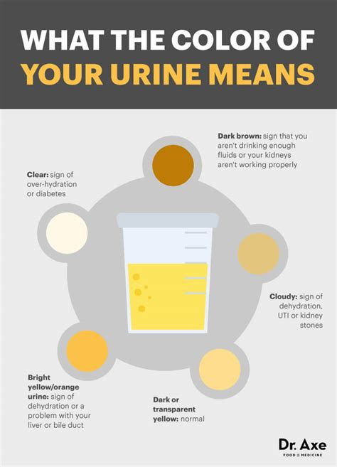 cloudy urine causes issues cloudy urine treatment dr axe