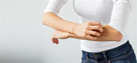 skin allergies home remedies 10 effective home remedies to treat skin allergies