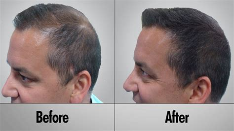 tc plus for bald spot and thinning hair hair loss treatment hair loss treatment for men how to