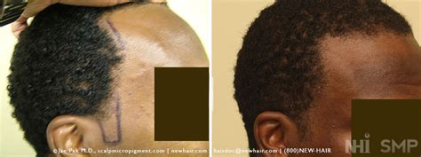 my hair is thinning on the sides afro american balding blog african american archives wrassman m d