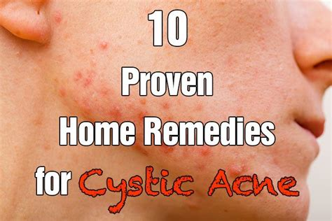 74 best images about cystic acne on tea tree