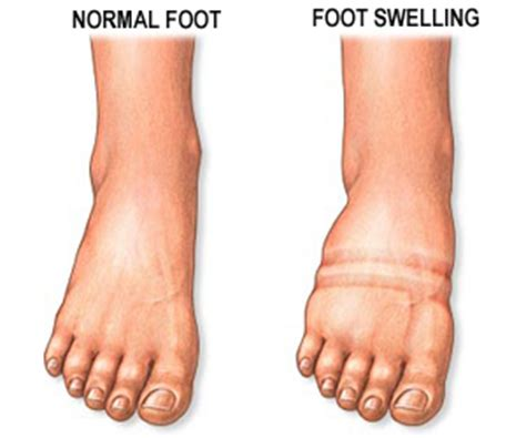 diabetic foot swelling diabetes healthy