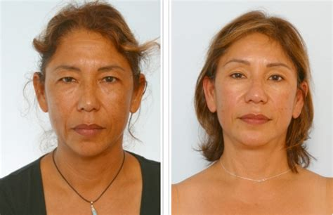 50 year old women before and after dr paul vitenas jr before and after houston facelift photos