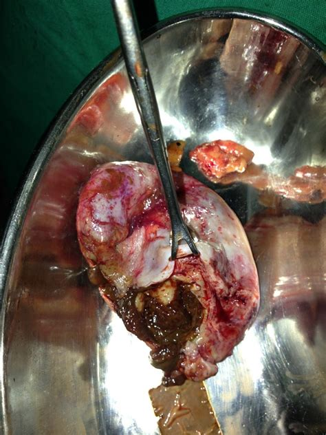 cyst burst laprotomy done for ruptured ovarian cyst dr singhals urology gynaecology centre