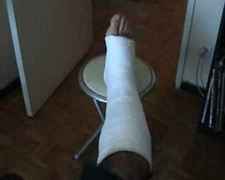 artemide le sur pied jambe dans le pl 226 tre