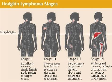 lymphoma stages what is lymphoma and stages of lymphoma