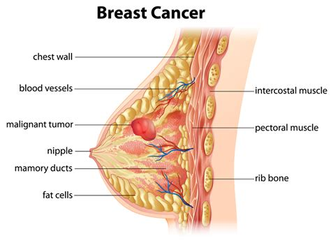 breast cancer 101 your book after diagnosis books this cuts deaths from breast cancer in half and it s