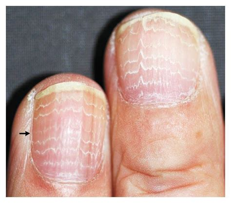 Beaus Lines How To Recognize A Beau Line Fingernail | cause of ridges in fingernails can they be a concern