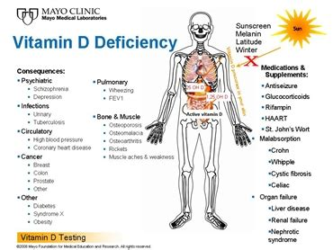 vitamin d deficiency free 1 hour vitamin d lecture 6 pack abs workout plan how to lose stomach fat in 1 week