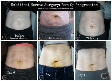 hernia after c section symptoms image gallery hernia recovery swelling