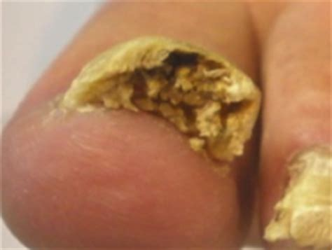 nail bed infection fungal nail infection 3