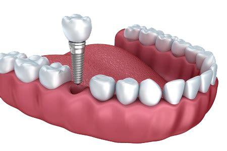 why patients choose dental implants over dental bridges