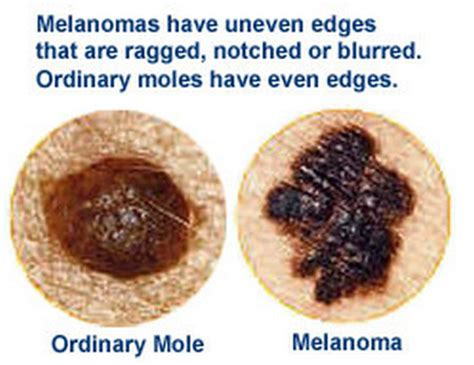 differences between malignant melanoma and a normal mole difference between a mole and a melanoma