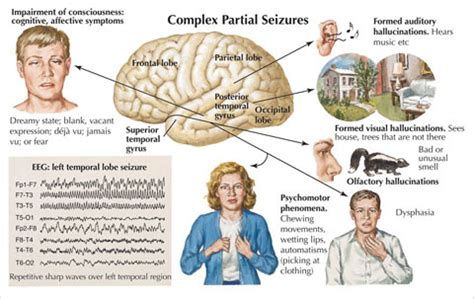 focal motor seizure symptoms seizures convulsions convulsive seizures jacksonian