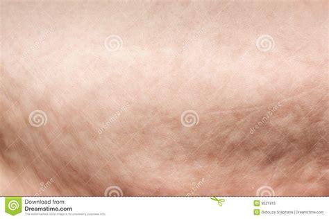 human skin background macro stock photo 366722105 cellulite macro stock image image of medicine 9521915