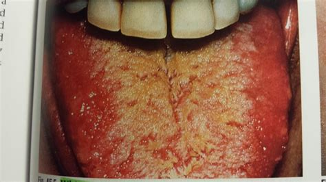 White Tongue Detox by Intraoral Lesions At Hcc Coleman College For Heath