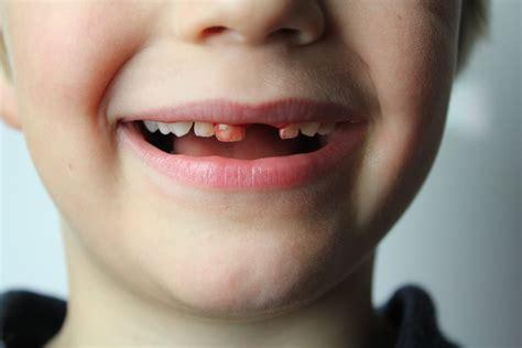 download mp3 gigi facebook baru pendarahan setelah cabut gigi dan 4 cara mudah mengatasinya