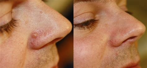 nose on mole removal surgery and laser treatment cosmedics bristol