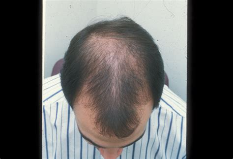 hairstyles for androgenectic alopecia causes of hair loss in men over 50