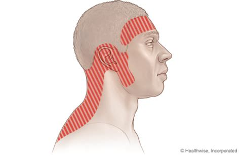 tension type headache physiopedia, universal access to