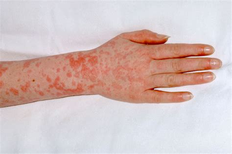 c section fever what is scarlet fever huffpost uk