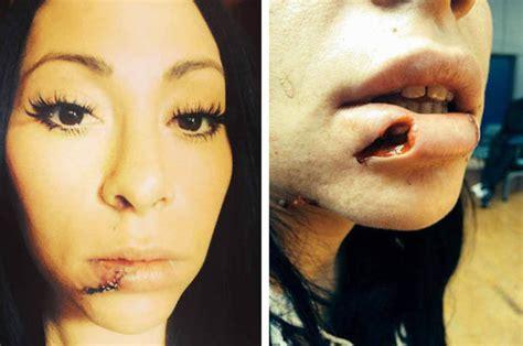 ripped   lip  pregnant woman