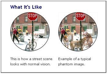 What Do Color Blind People See Charles Bonnet Syndrome Macula Vision Research Foundation
