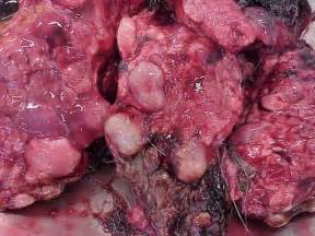 symptoms of a bad gallbladder cause green stool