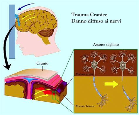 ematoma interno cranico sintomi conseguenze e terapia