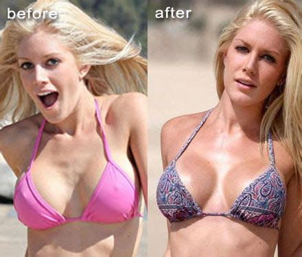 heidi montag to get rid of her breast implants!