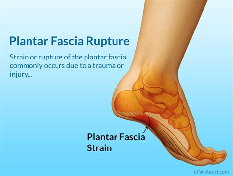 Planters Fasciitis Symptoms by Plantar Fascia Strain Or Plantar Fascia Rupture Causes