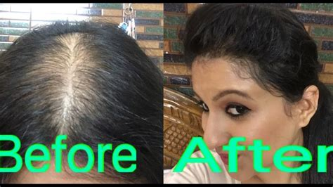 styles of woman who hide their bald spots how to style your hair in partial alopecia to hide bald