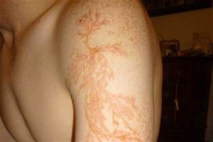 Struck By Lightning Images Here S What A Lightning Strike Can Do To Your Skin Nbc News