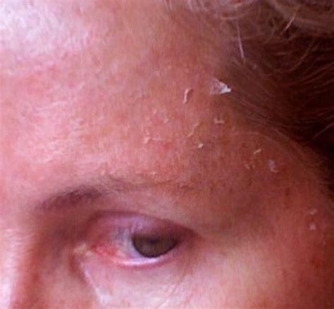 flaky skin white spots on treatment