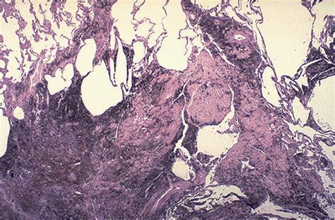 Asbestosis Pathology Outlines by Pathology Outlines Coal Workers Pneumoconiosis Progressive Fibrosis